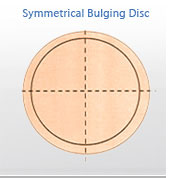 Symmetrical bulging disc